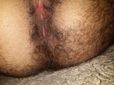 anal rash and itching
