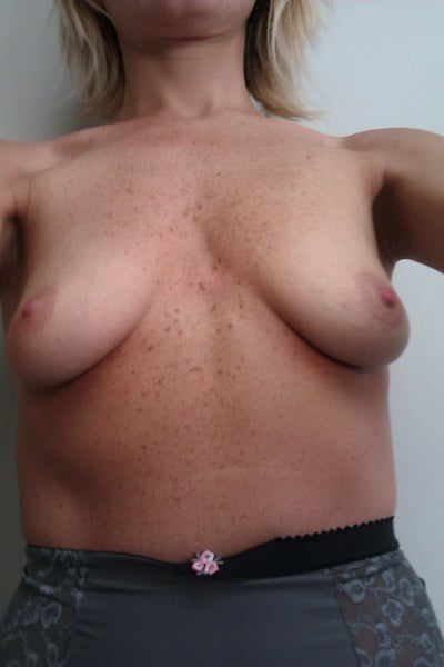 breast pigeon breast augmentation