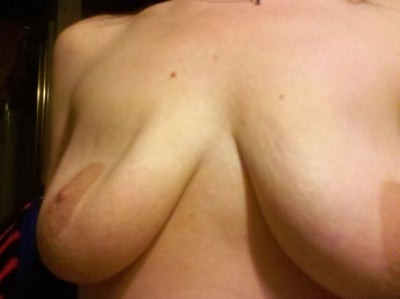 Deflated saline breast