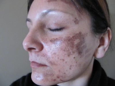 Lucky facial burn pictures magnificent!!!
