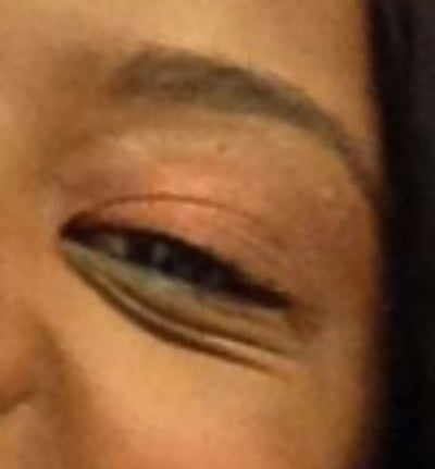 how to get rid of deep set under eyes