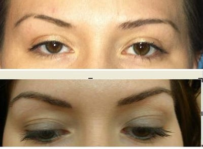 Year after permanent eyebrows
