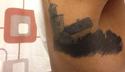 Is laser tattoo removal successful on light complected for Tattoo laser removal on black skin