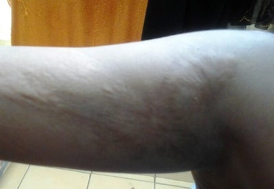 Does Fraxel Repair Remove Sever Burn Marks? (photo) Doctor ...