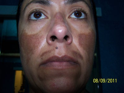 Melasma Darker After Two Vipeels And Prominent In Areas I