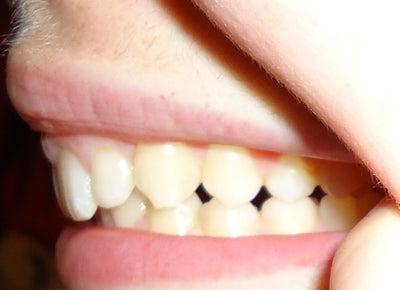 Braces Vs. Invisalign for Overbite/overjet Dentist Answers ...