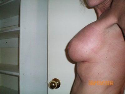 tokra boob