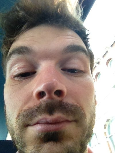 Untreated Broken Cheekbone