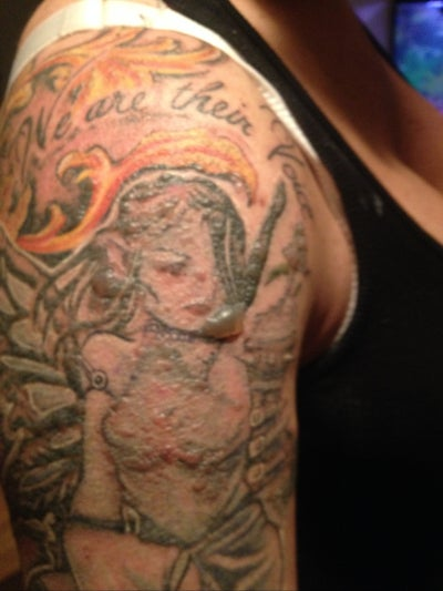 Blog tattoo removal for Picosure tattoo removal maryland