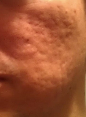 Any Hope for Severe Acne Scars? (photo) Doctor Answers, Tips