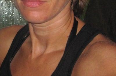 Remove lines on neck