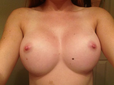 Breast augmentation revision augmentation texas worth