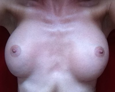 Asymmetrical Nipples 22