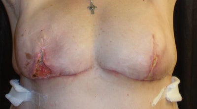 Curious topic Breast reconstruction necrosis about