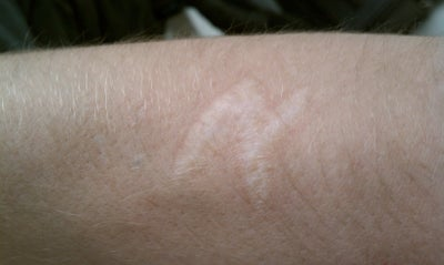 how to get rid of old scars from cutting