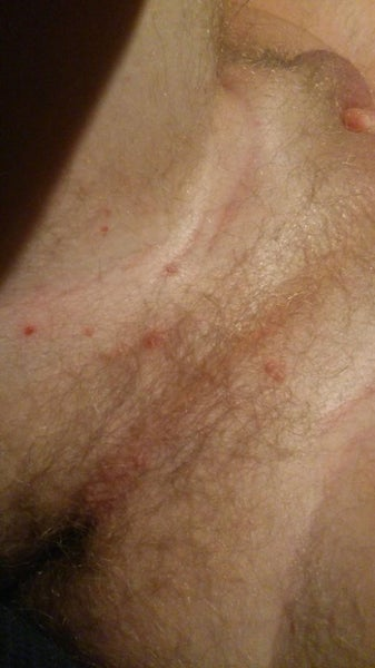 Pimple on Penis: What Should I Do? - STDcheckcom
