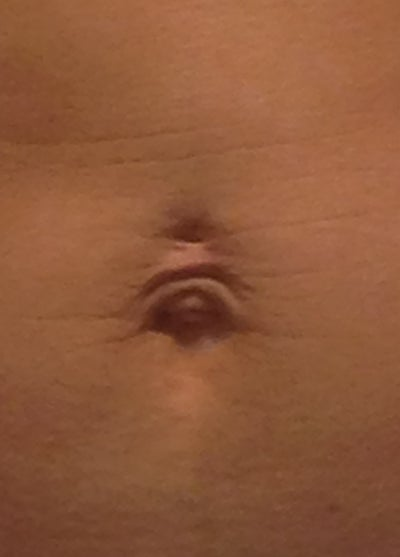 Loose Skin That Hangs over my Belly Button. Which ...