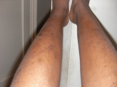 Treatments for scars on legs
