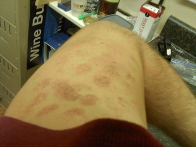 Burn wound healing and treatment: review and advancements