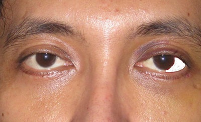 Droopy Lower Eyelid After Lower Eyelid Surgery Doctor ...
