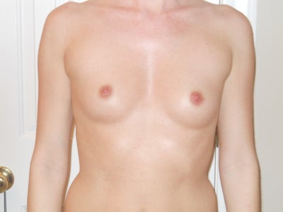 Breast Augmentation - California Surgical Institute