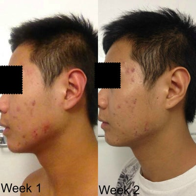 How Effective Is Accutane On Acne What Are The Side