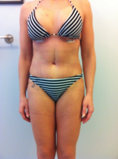 For cost of breast reduction in canada