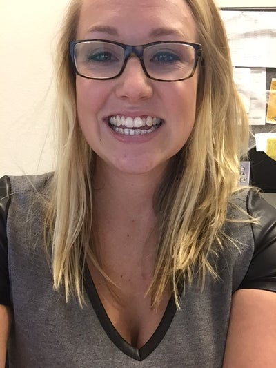 24 Years Old, Previously Had Traditional Braces, but Didn ...
