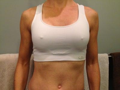 E Breast Implants 10 Weeks Post-op - Bre...