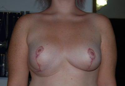 ariel cope boobs