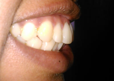 Do I have an overbite or an overjet? How long will I have ...