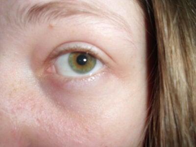 Sunken Eyes and Restylane Didn't Help? (photo) Doctor ...