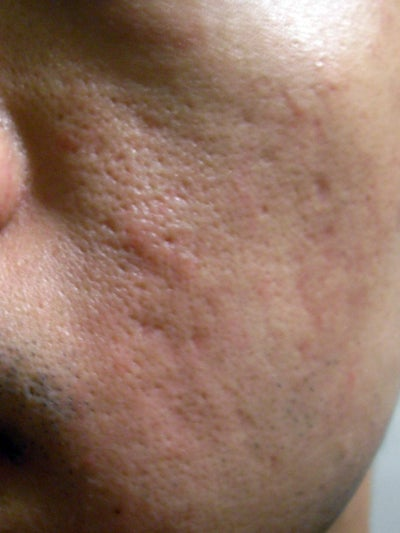 Is This Acne or Hypertrophic Scarring? (photo) Doctor