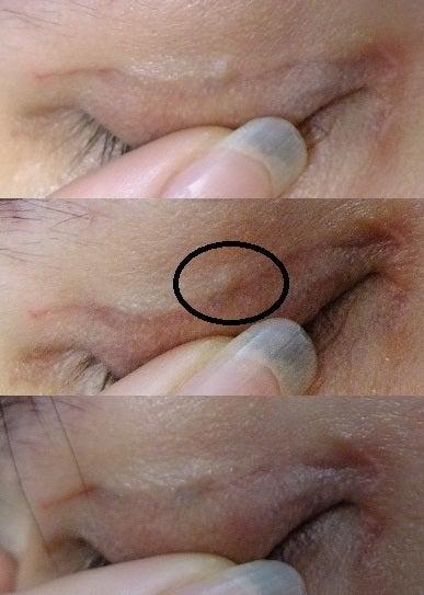 Dark Lump Under Skin