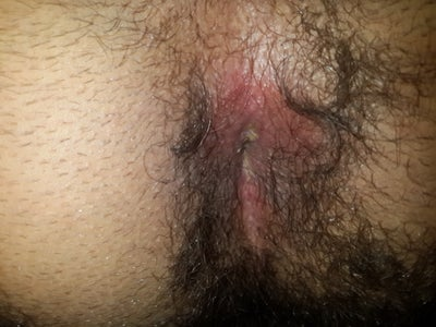 Anal itching and irritation