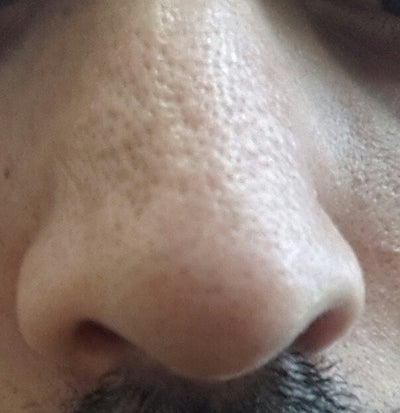 how to stop clogged pores