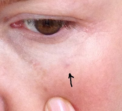 how to get rid of blue veins under eyes