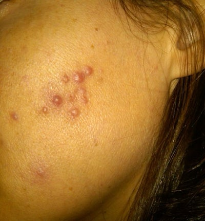 Ematrix for Current (Hormonal) Acne Outbreaks Doctor