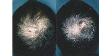 Hair Care before and after photos
