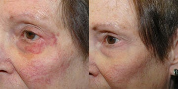 Facial Reconstructive Surgery before and after photos