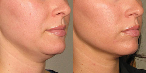 Ultherapy before and after photos