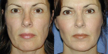 Cheek Augmentation before and after photos
