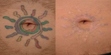Tattoo Removal before and after photos