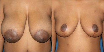 Breast Reduction before and after photos