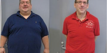 Duodenal Switch before and after photos