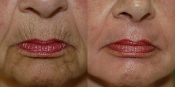 Chemical Peel before and after photos