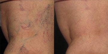 Sclerotherapy before and after photos