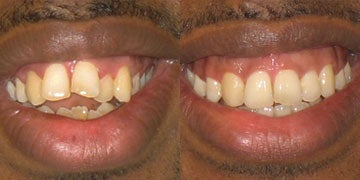Braces before and after photos