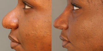 African American Rhinoplasty before and after photos