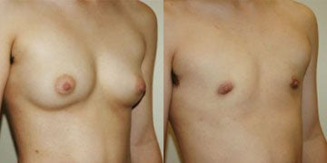 Gender Reassignment Surgery before and after photos